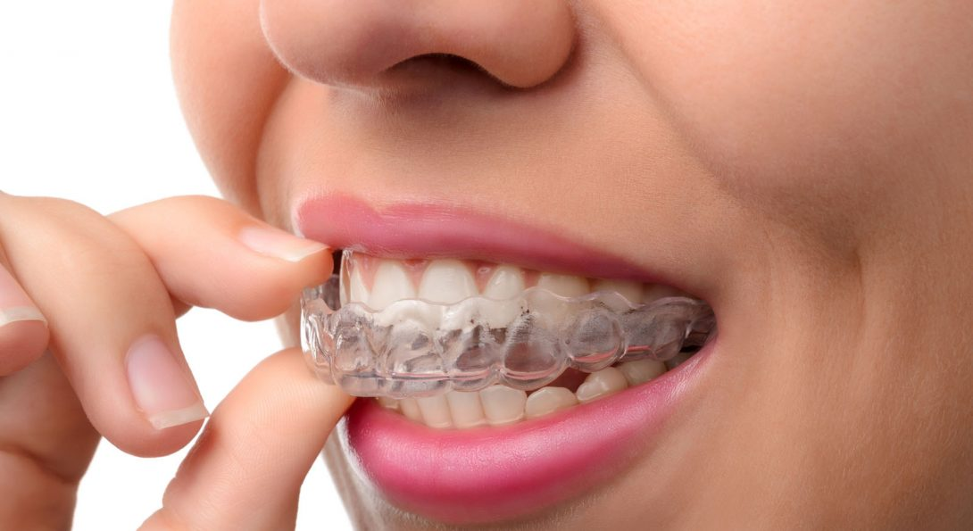 All You Need to Know About Teeth Aligners
